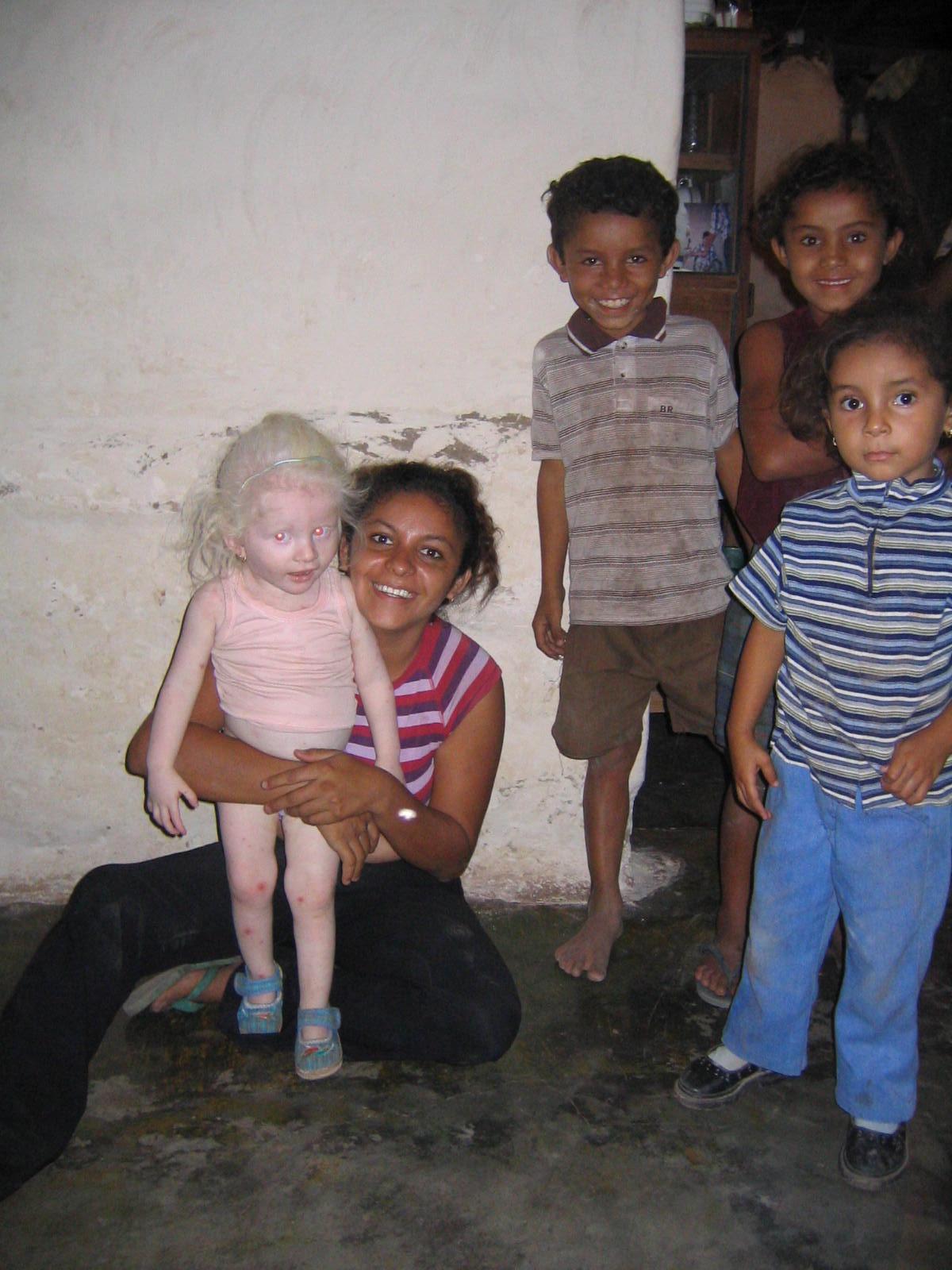 http://naturescrusaders.files.wordpress.com/2009/01/albino_girl_honduras2.jpg